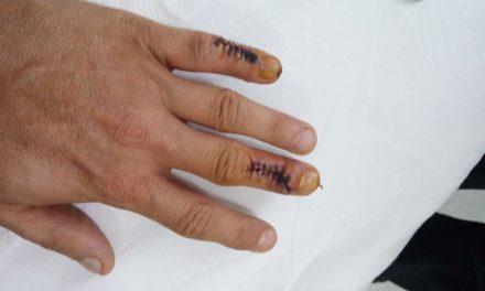 Anchetă după ce un renumit medic chirurg i-a operat unui pacient degetul sănătos