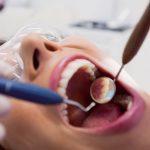 Boala parodontală: cauze, tratament și cum poate fi prevenită. Ce spune medicul specialist